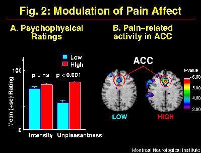 cerebro-mapa-modulacion-del-dolor